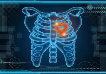 Glowing Ribcage Vector Background - Kostenloses vector #425349