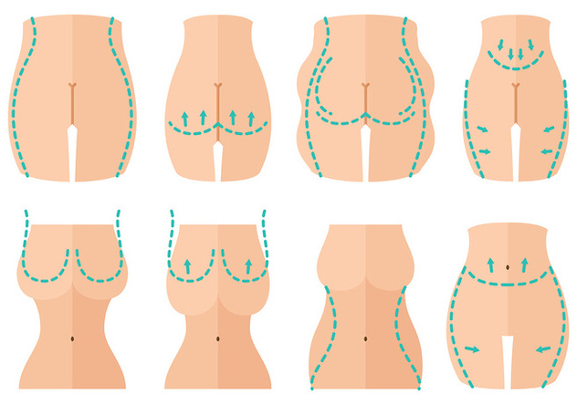 Free Plastic Surgery Icons Vector - бесплатный vector #405969